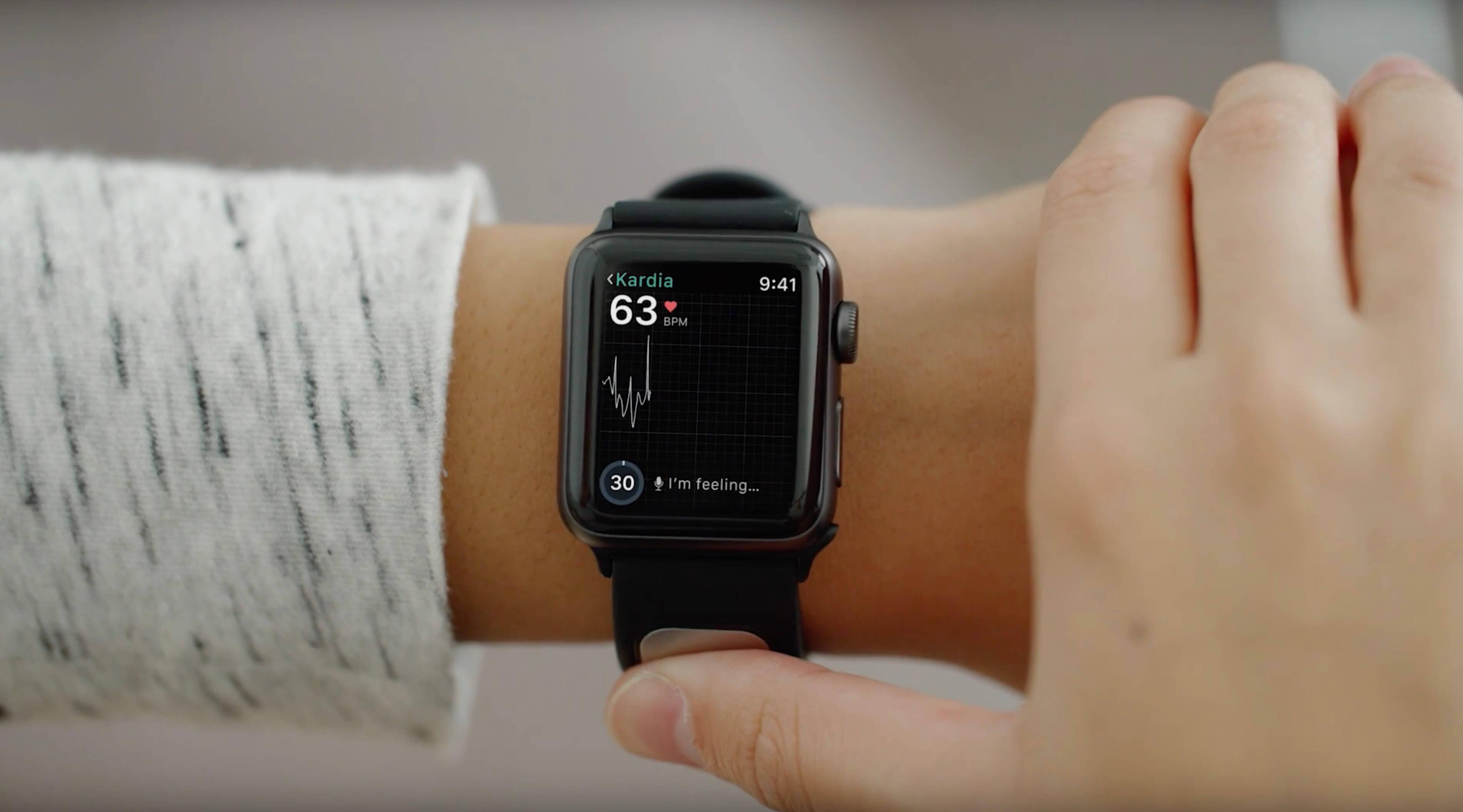 Следующее поколение Apple Watch могут оснастить датчиком ЭКГ